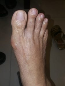 The bunion after using the splint