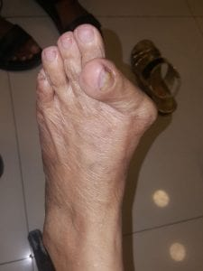 before the bunion corrector